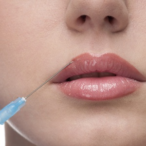 Injectable Dermal Fillers dallas