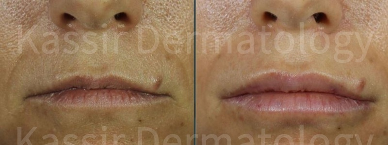Injectable Dermal Fillers dallas image