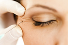 Botox Injections dallas