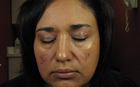 Melasma Treatment dallas